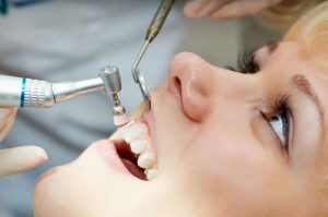 dental-cleanings